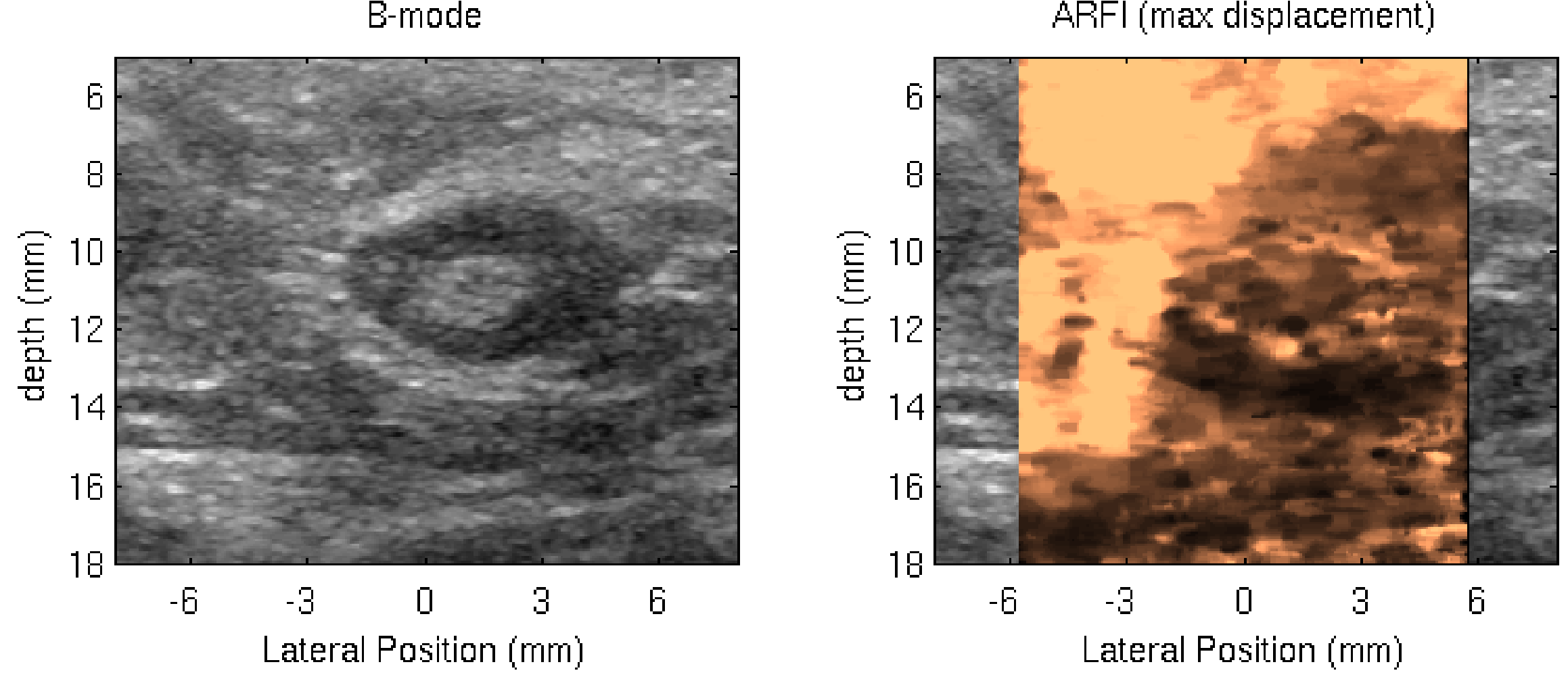ARFI Image of Lymph Node